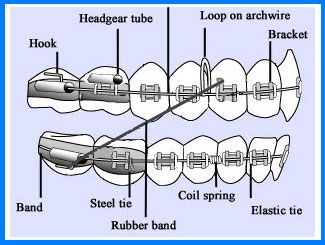 Braces Diagram